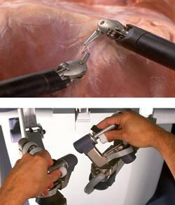 Example of laproscopic tools